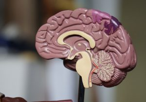 The Top 3 Causes of Traumatic Brain Injuries